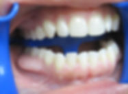 Larry_Teeth_009.jpg