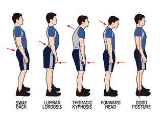 What posture are you?