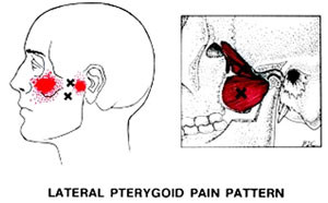 Trigger-Image-2-Lateral-Pterygoid_300x.jpg