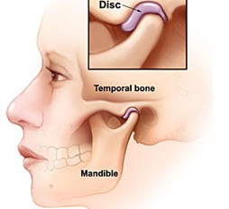 What is TMJ pain?