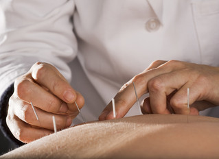 The Surprise benefits of dry needling.