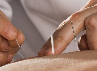 What is the difference between dry needling and acupuncture?