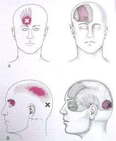 occipitalis frontalis.jpg