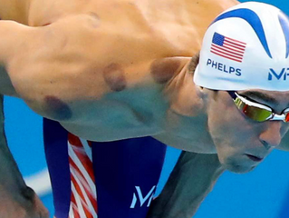 What's the deal with Cupping and those red marks on your back?