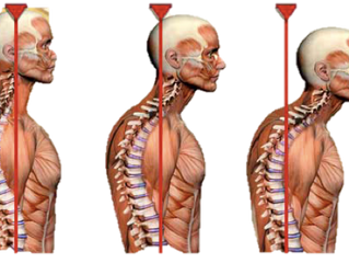 Is your posture causing your headaches?