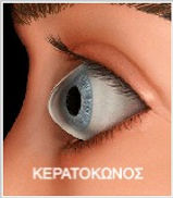 keratoconus_edited.jpg