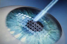 Lasik-Laser-Eye-Surgery-Information.jpg