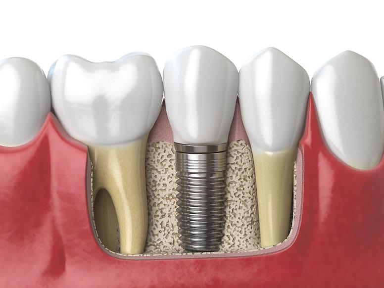 implantat im knoch mit zahnfleisch