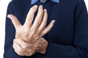 """O mês de outubro e os alertas sobre as doenças reumáticas: não é """"doença de velho""""!"""