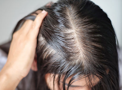 Women with thin hair there are pulses fr