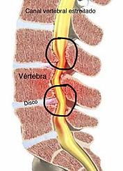 canal vertebral estreito