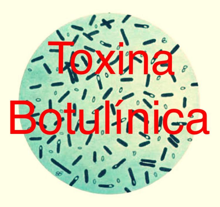 Enxaqueca e toxina botulínica
