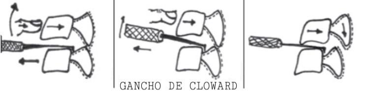 Gancho de Cloward