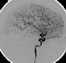 Angiografafia cerebral