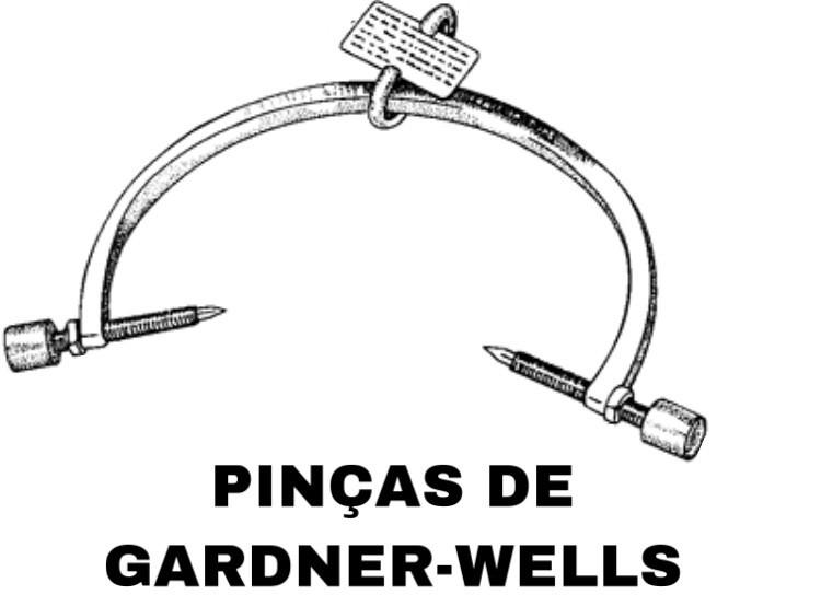 Pinças de Gardner-Wells