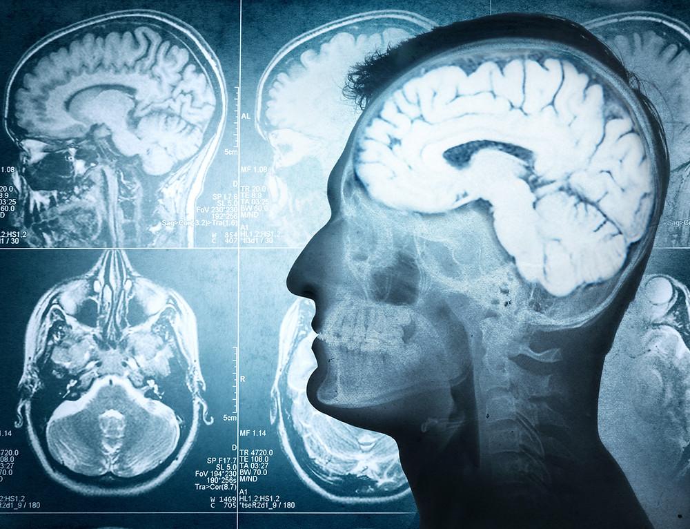 Dissecção de artéria vertebral