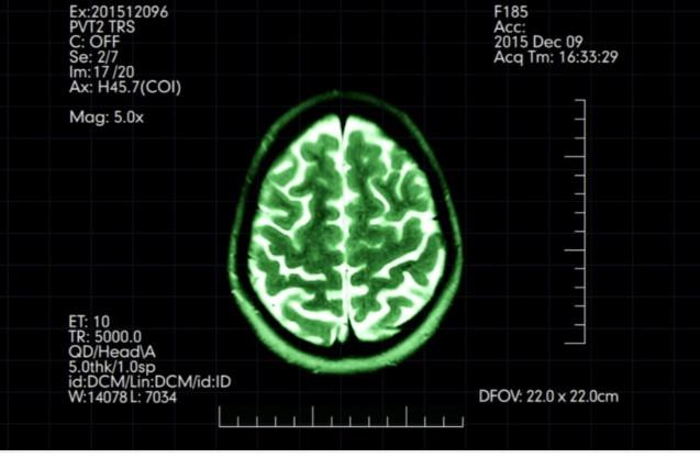Protocolo Clinico e Diretrizes Terapêuticas para Esclerose Múltipla