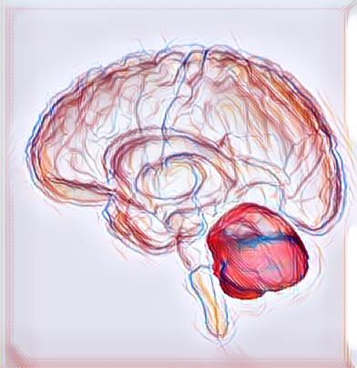 Cirurgia em isquemia cerebelar?