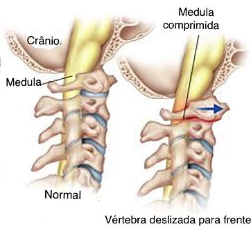 artrite e coluna vertebral