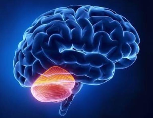 Xantomatose cerebrotendinea