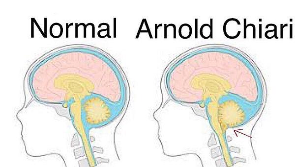 Malformação de Arnold Chiari