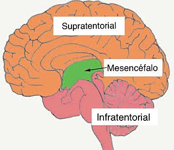 mesencefalotomia