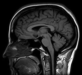 Imagem lateral de ressonância de encéfalo
