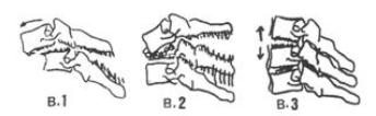 Fratura cervical baixa tipo B