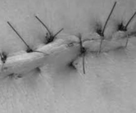Como funciona a cicatrização de uma ferida operatória?