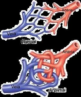 Mal formação vascular