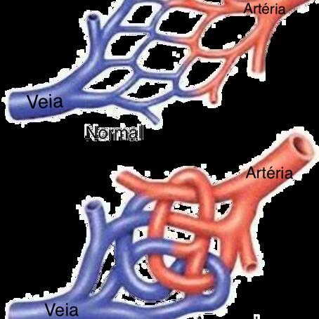 Tratamento das Malformações Arteriovenosas (MAV)