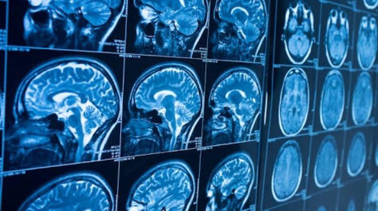 Tratamento de cefaléia em salvas