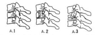 Fraturas cervicais baixas tipo A