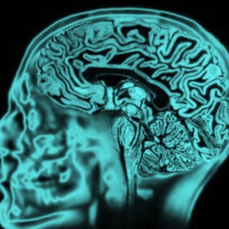 Ocrelizumabe para Esclerose Múltipla