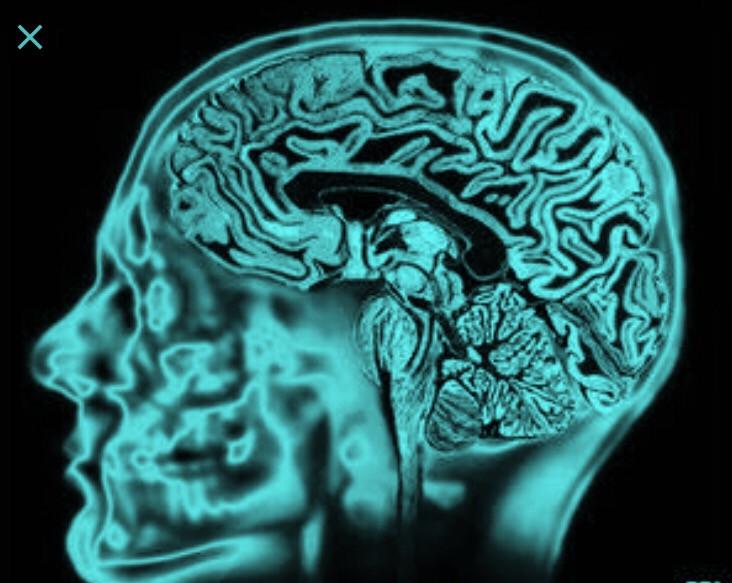 Ocrelizumabe e esclerose múltipla