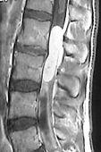 Tumores da coluna vertebral