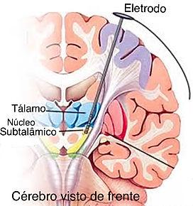 Introdução de eletrodo profundo para o tratamento de Parkinson