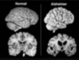 Cérebro afetado pela degeneração vista na Doença de Alzheimer
