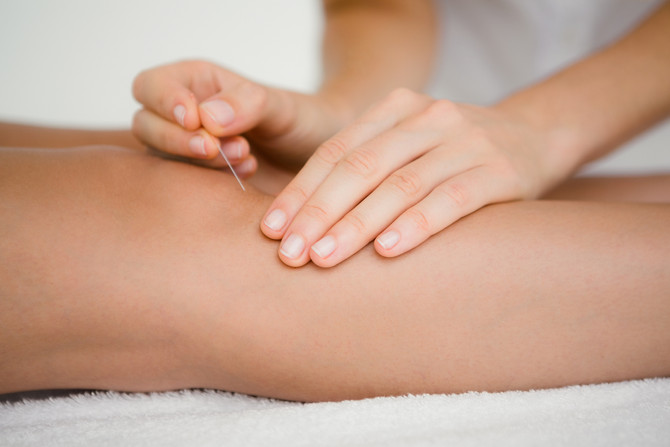 Cervical Ripening - Acupuncture to Prepare the Body for Birth