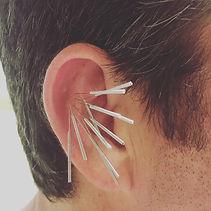 Auriculo Acupuncture