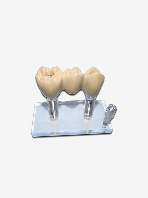 Macro Modelo de Implantes