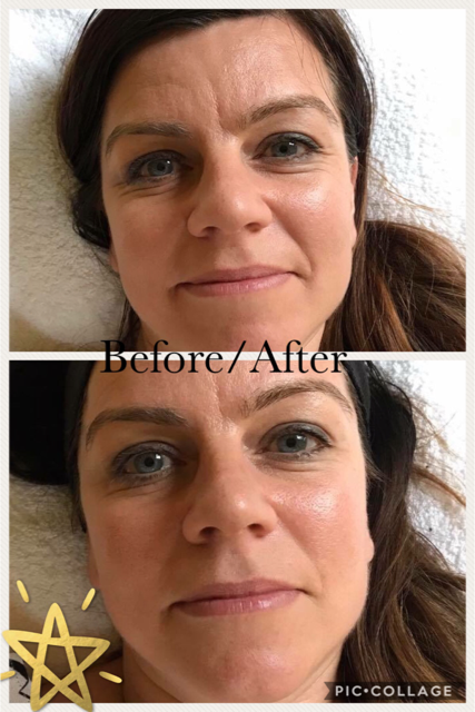 ZONE FACE LIFT, ANTI-AGING, REJUVENATING, RELAXING
