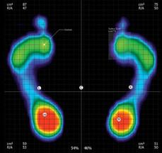 Static foot pressure map