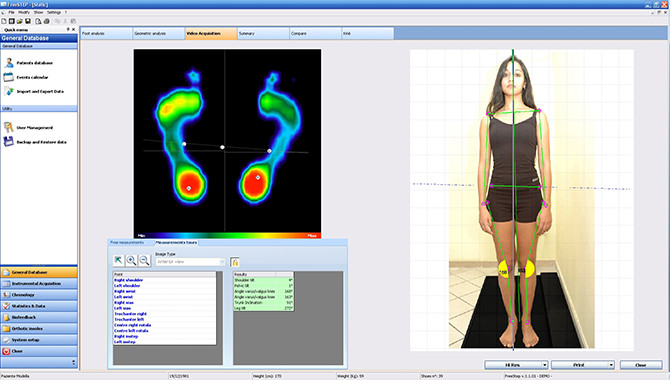 Static postural analysis in freeStep