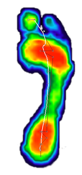 foot pressure map example