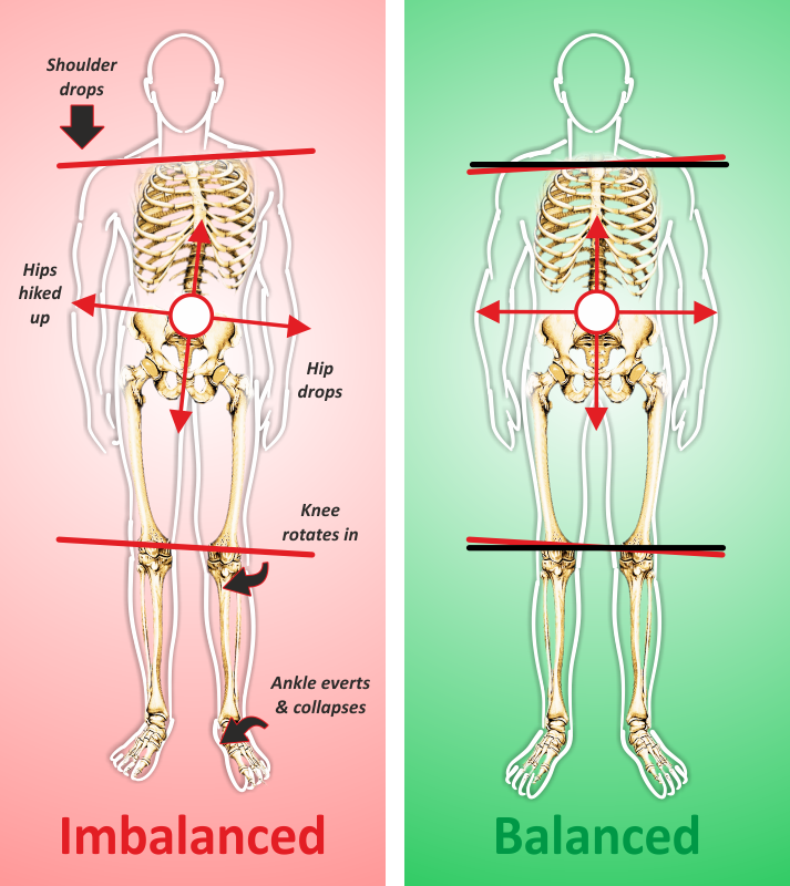 Imbalanced and balanced body structure
