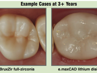 BruxZir and e.maxCAD are the best white colour crown materials , which are used in False Creek Pure