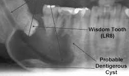 Dentigerous cyst realted impacted wisdom tooth