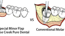 Minor flap wisdom tooth extraction @ false Creek Pure Dental