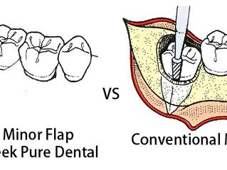 Minor flap wisdom tooth extraction @ false Creek Pure Dental